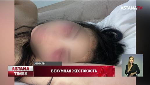 """«Ни одного зуба во рту"""", - родственница жестоко избитой в Шымкенте женщины рассказала подробности"""